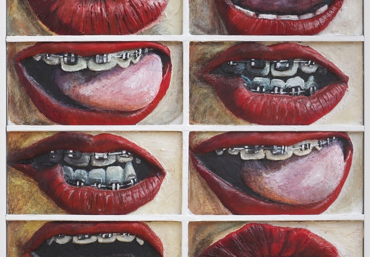 Gina Beavers. Who Has Braces. 2014.  Acrylic and wood on canvas panel. Courtesy of the artist.