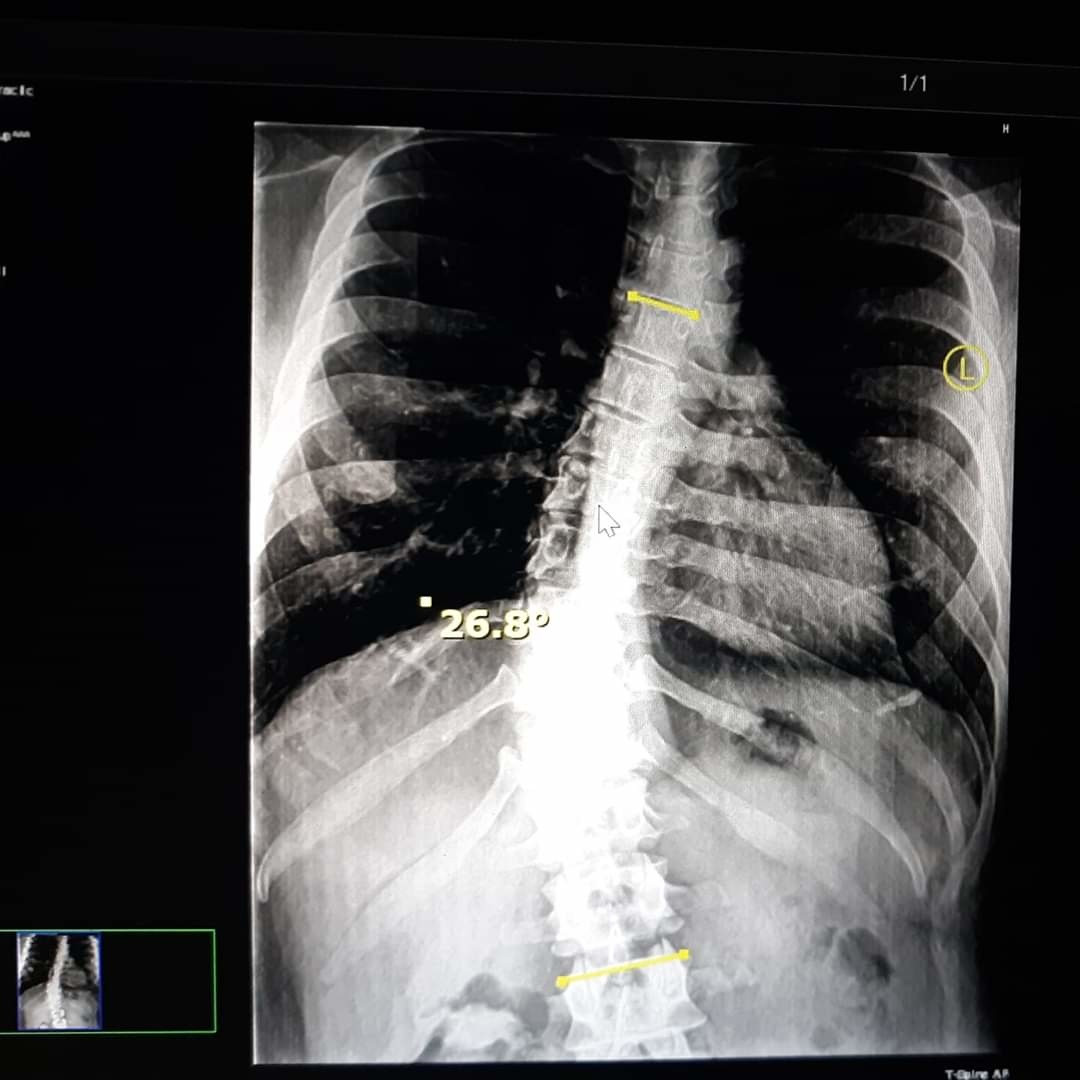 X-ray of my spine
