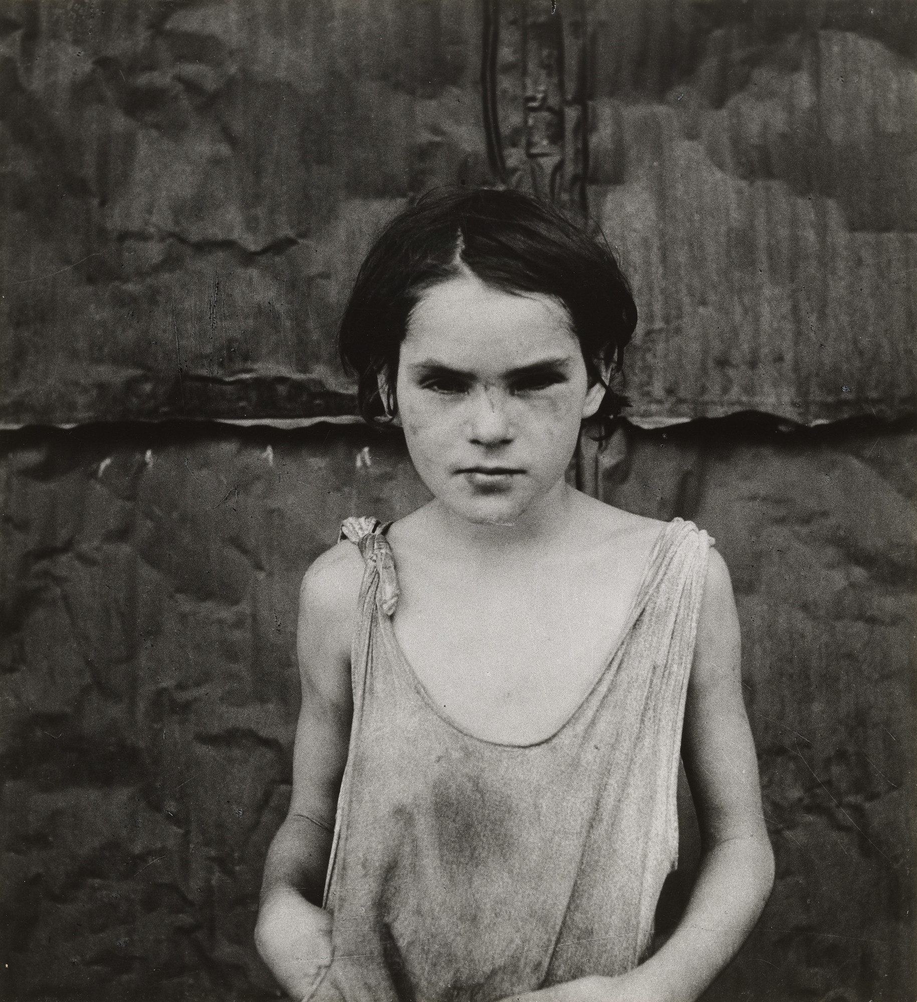 Dorothea Lange. Damaged Child, Shacktown, Elm Grove, Oklahoma. August 1936