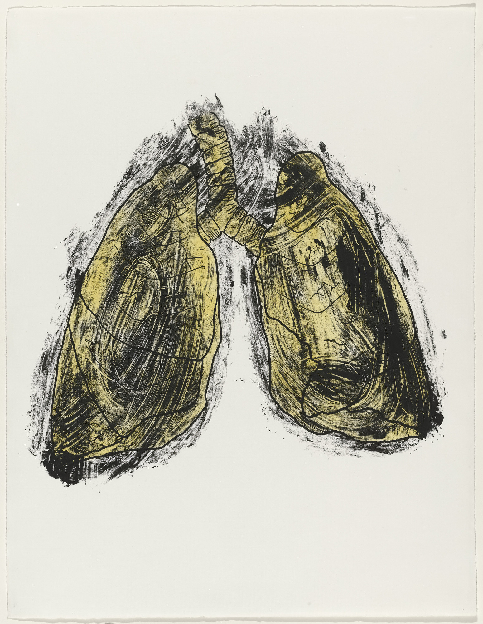 Kiki Smith. Lungs from Possession Is Nine-Tenths of the Law. 1985
