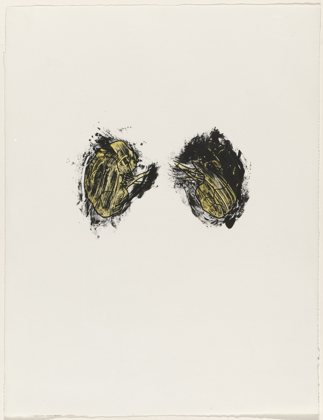 Kiki Smith. Kidneys from Possession Is Nine-Tenths of the Law. 1985