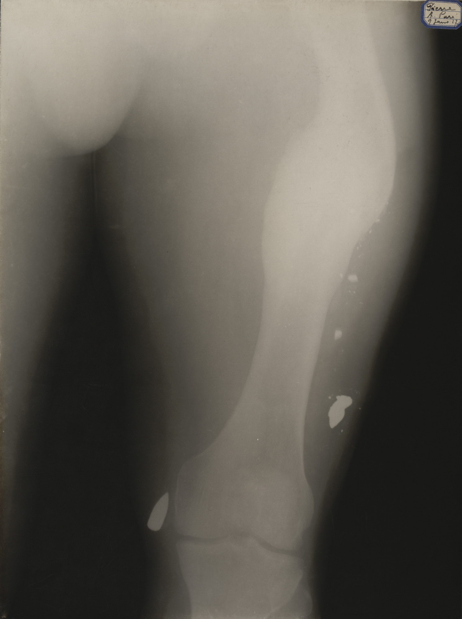 Unknown photographer. X-Ray. 1917