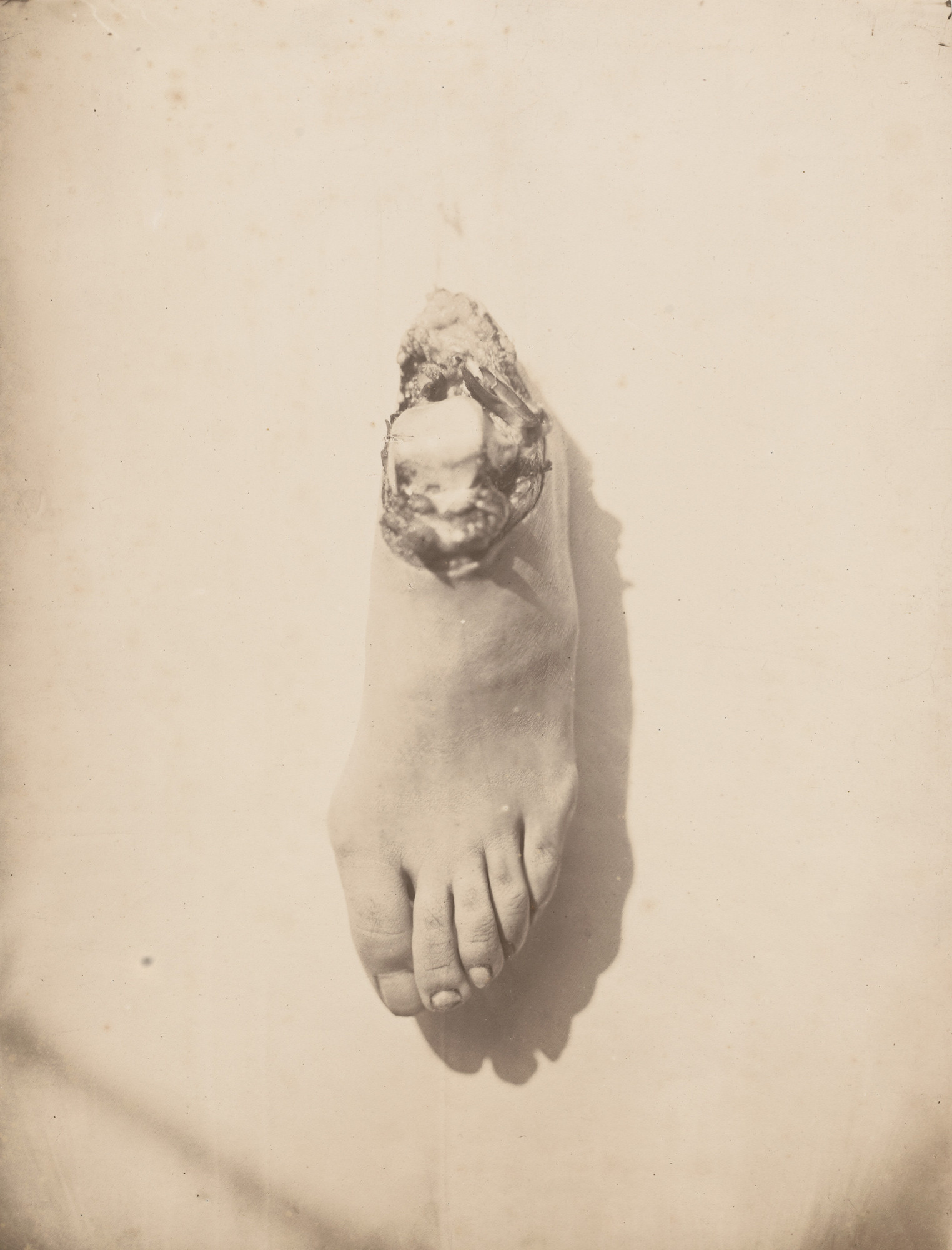 Unknown. Untitled. c. 1855